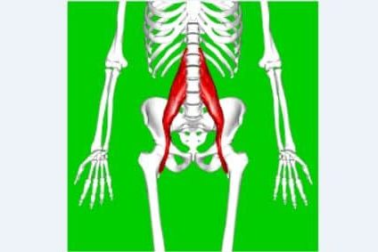 Muscle de Psoas : Inflammation de tendinopathie .